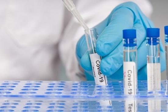 Covid Marche: 519 nuovi positivi, 1 caso ogni 4 tamponi nel percorso diagnosi